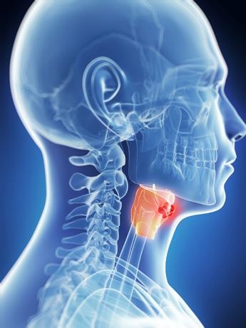 patologia y tratamiento garganta cancer de garganta